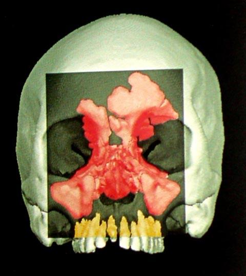 human-sinuses