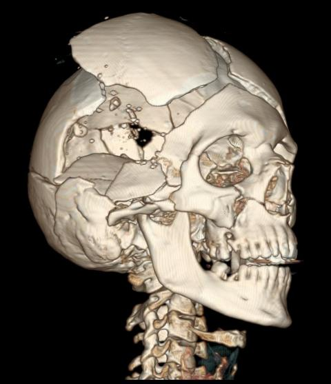 CT reconstruction of skull with bullet holes. Courtesy of the National Library of Medicine