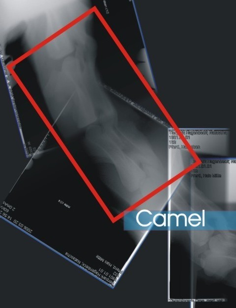 Invertebrals disc space V2-CAMEL