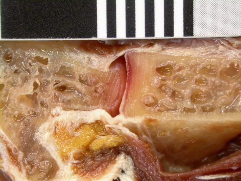 Figure 18. Cartilage in the neck of a rhea. Joint between cervicals 11 (left) and 10 (right) of a rhea, sagittally bisected. Left half of neck in medial view. The thin layers of cartilage lining the C11 condyle and C10 cotyle are clearly visible.