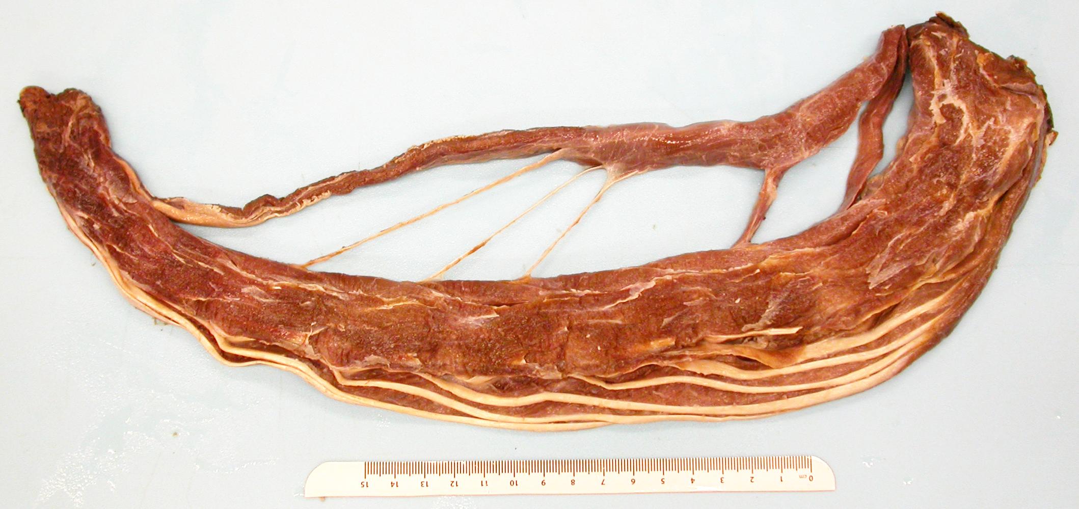 Rhea neck muscles fanned - full