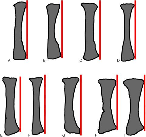 Fig 10. Comparisons of sauropod radii in anterior view. Exemplar profiles of sauropod left radii in anterior view: A, Mamenchisaurus youngi (ZDM 0083 [107]); B, Ferganasaurus (PIN 3042/1 [101]); C, Apatosaurus louisae (CM 3018 [104]); D, Camarasaurus grandis (YPM 1901 [100]); E, Haestasaurus (NHMUK R1870); F, Giraffatitan (MfN MB.R 2181 [87]); G, Epachthosaurus (UNPSJB-PV 920, based on a photograph by PDM); H, Diamantinasaurus (AAOD 603 [80]); I, Neuquensaurus (MLP-CS 1169 [90]). The red lines are drawn parallel to the vertical long-axis of each radial shaft, at a tangent to the lateral tip of the distal end. F-I are right radii that have been reversed in order to facilitate comparison. Profiles not drawn to the same scale.