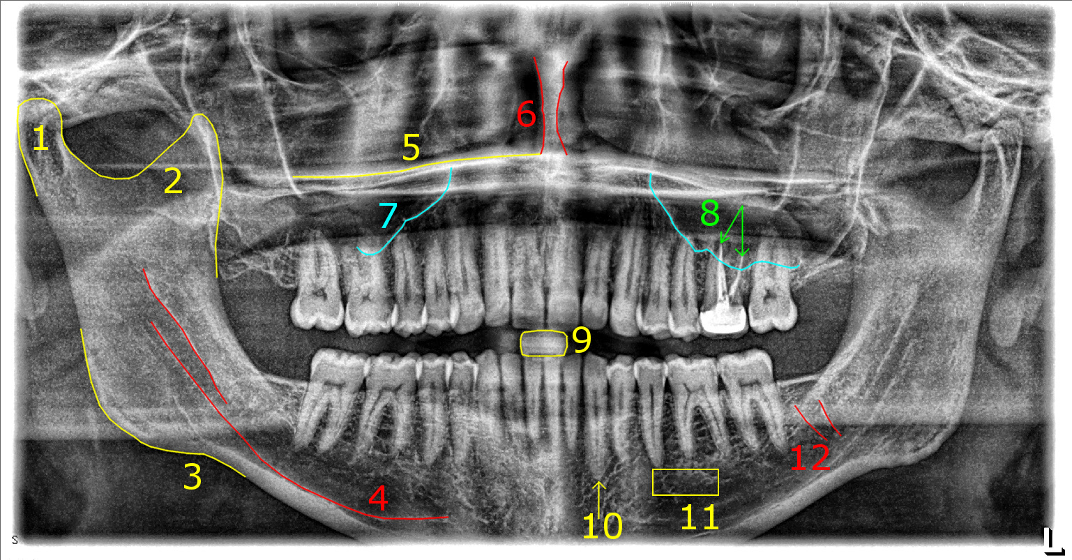 Smile Fun Things To Look For In Your Dental Xrays Sauropod. 1 Canine 2 Premolars And 3 Molars On Each Side Top Bottom For A Total Of 32 Teeth Because I've Had All Four 3rd Removed I'm Down To 28. Wiring. Mouth Diagram Labeled Radiograph At Scoala.co