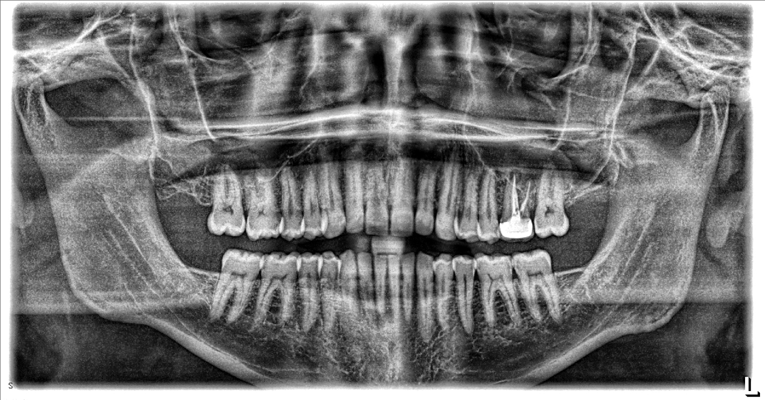 xray of front teeth - photo #15